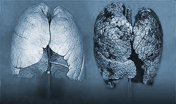 Табакокурение реферат Концепция общественной безопасности Табакокурение или просто курение вдыхание дыма тлеющих высушенных или обработанных листьев табака наиболее часто в виде курения сигарет